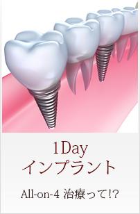 Menu01 1Dayインプラント All on 4治療って!?