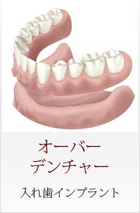 Menu04 オーバーデンチャー 入れ歯インプラント