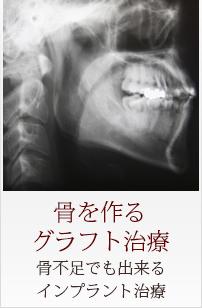Menu05 骨を作るグラフト治療 骨不足でも出来るインプラント治療